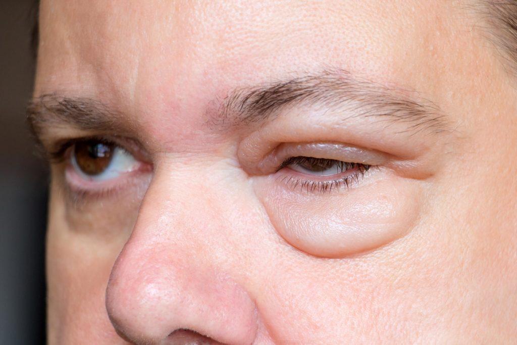 Augenschwellungen: geschwollene Augen (Lidödem) - dr ...